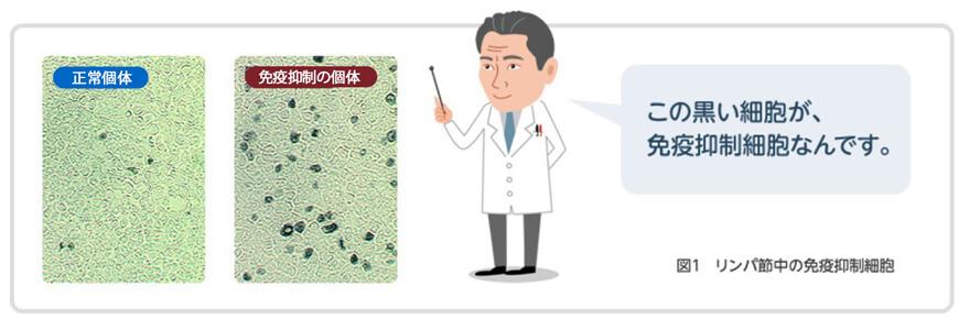 図1:一定の条件で免疫を抑制する「免疫抑制細胞」などが異常に増えることがわかってきました。リンパ節中の免疫抑制細胞。この黒い細胞が、免疫抑制細胞なんです。