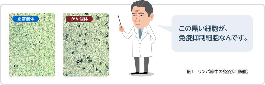 図1:リンパ節中の免疫抑制細胞正常個体とがん(癌)個体の比較。右側のがん(癌)個体の画像にある黒い細胞が、免疫の働き(免疫力)を無力化する「免疫抑制細胞」です。がん(癌)になると、「免疫抑制細胞」などが異常に増えることがわかってきました
